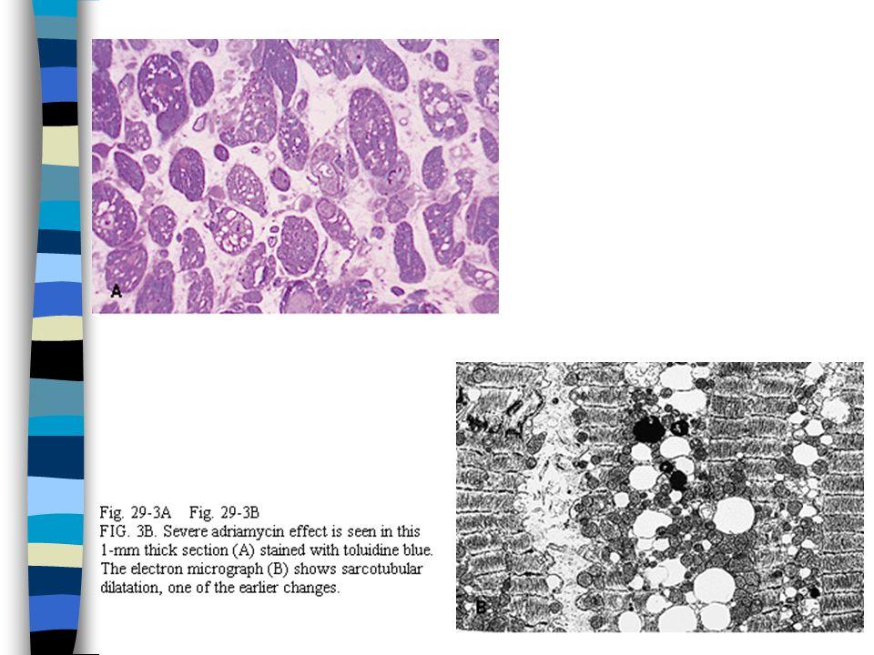 Hipertrofik kardiyomyopati n İdiopatik hipertrofik subaortik stenoz, hipertrofik obstriktif kardiyomyopati n Morf: ventrikül dilatasyonu olmaksızın massif myokardiyal hipertrofi