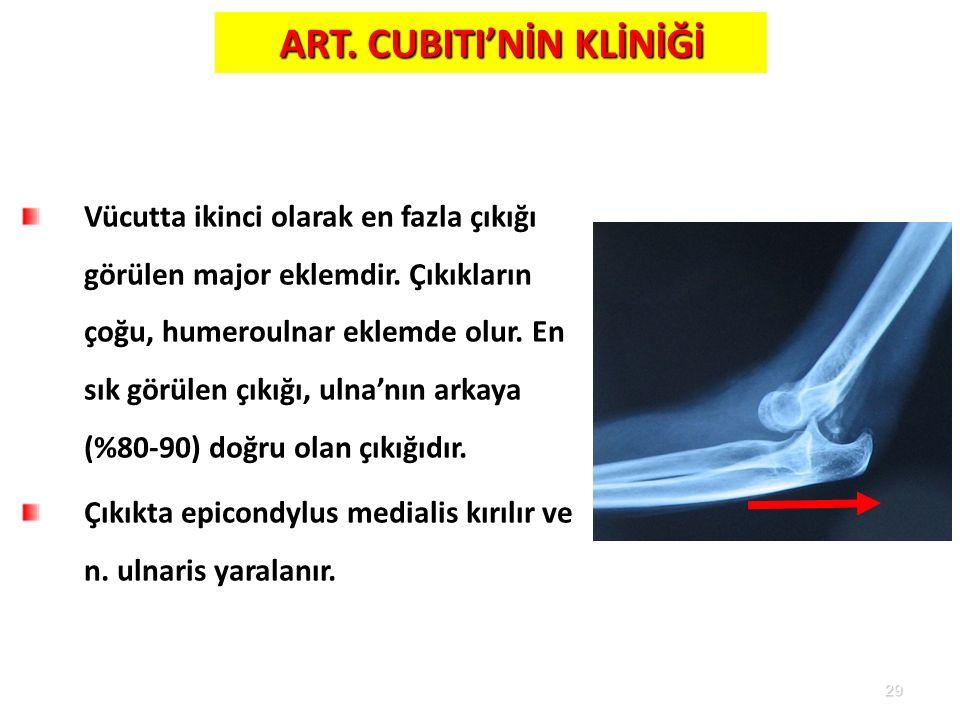29 ART. CUBITI'NİN KLİNİĞİ Vücutta ikinci olarak en fazla çıkığı görülen major eklemdir. Çıkıkların çoğu, humeroulnar eklemde olur. En sık görülen çık