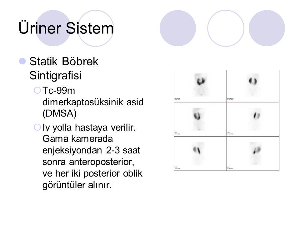 Üriner Sistem Statik Böbrek Sintigrafisi  Tc-99m dimerkaptosüksinik asid (DMSA)  Iv yolla hastaya verilir. Gama kamerada enjeksiyondan 2-3 saat sonr