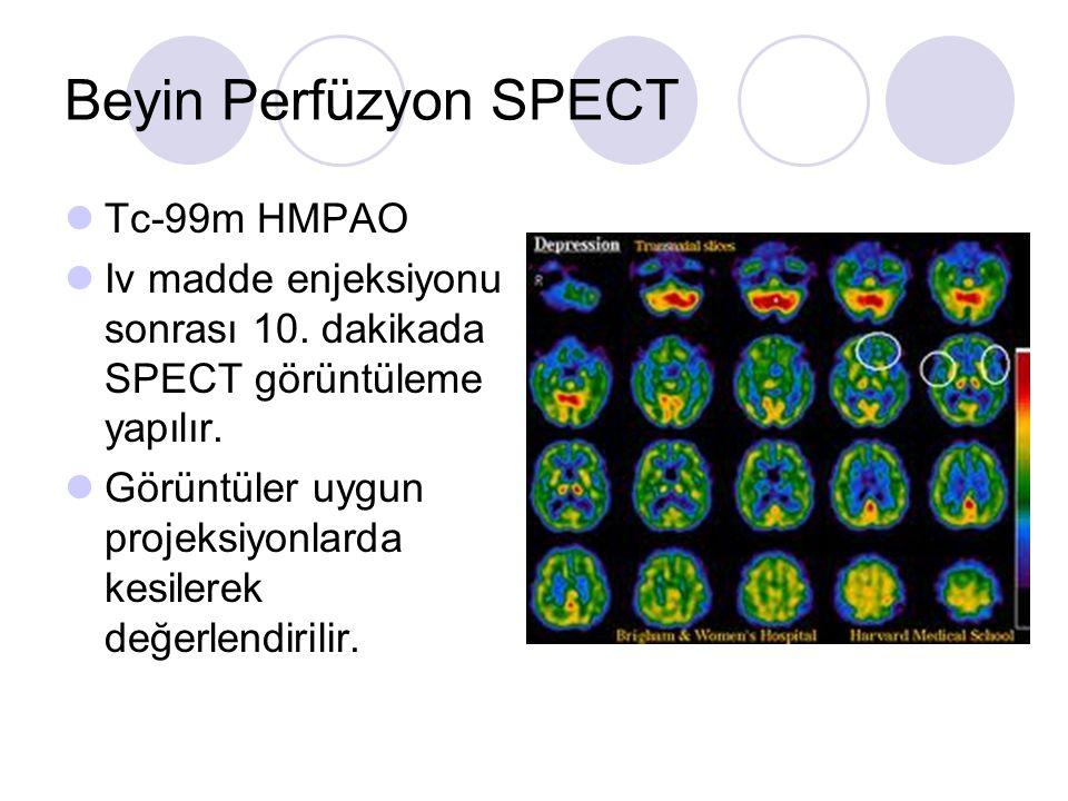 Beyin Perfüzyon SPECT Tc-99m HMPAO Iv madde enjeksiyonu sonrası 10. dakikada SPECT görüntüleme yapılır. Görüntüler uygun projeksiyonlarda kesilerek de