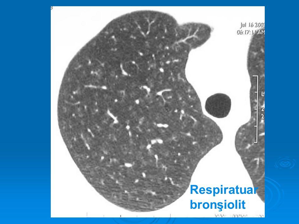 Respiratuar bronşiolit