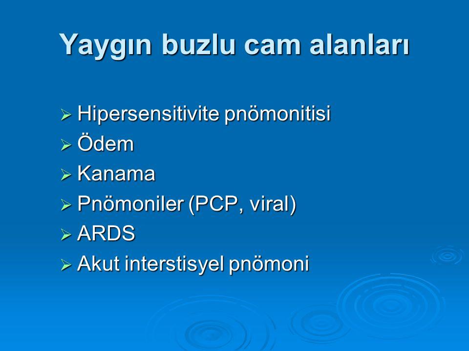 Yaygın buzlu cam alanları  Hipersensitivite pnömonitisi  Ödem  Kanama  Pnömoniler (PCP, viral)  ARDS  Akut interstisyel pnömoni