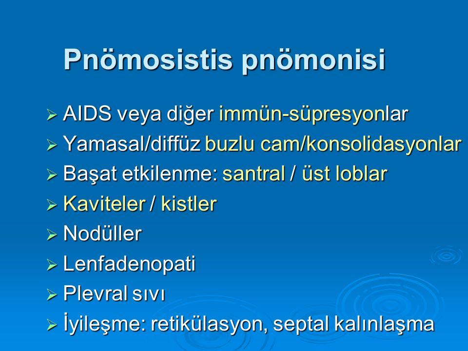  AIDS veya diğer immün-süpresyonlar  Yamasal/diffüz buzlu cam/konsolidasyonlar  Başat etkilenme: santral / üst loblar  Kaviteler / kistler  Nodül