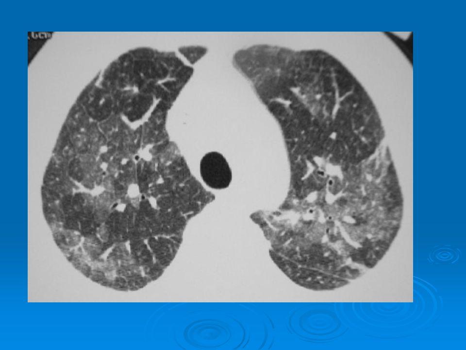  ÜSYE'yi takiben solunum yetmezliği  Mekanik ventilasyon gereksinimi  Eksüdatif evre: Yaygın buzlu cam ve konsolidasyonlar (alt zonlarda ve arkalarda daha belirgin) Yaygın buzlu cam ve konsolidasyonlar (alt zonlarda ve arkalarda daha belirgin)  Proliferatif evre: Traksiyon bronşiektazisi, distorsiyon, balpeteği Traksiyon bronşiektazisi, distorsiyon, balpeteği