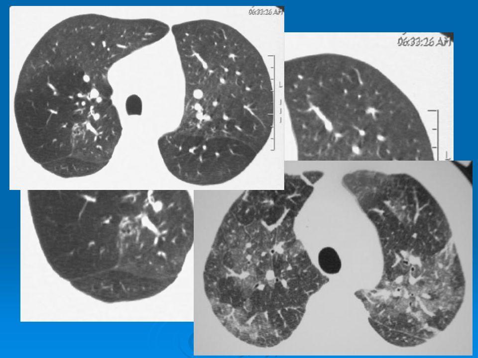 Nonspesifik interstisyel pnömoni  Yamasal buzlu cam / konsolidasyon  Başat etkilenme: periferal ve alt zonlarda  Ağsı desen  IPF'den farkı: Balpeteği belirgin değil Balpeteği belirgin değil Subplevral korunma Subplevral korunma