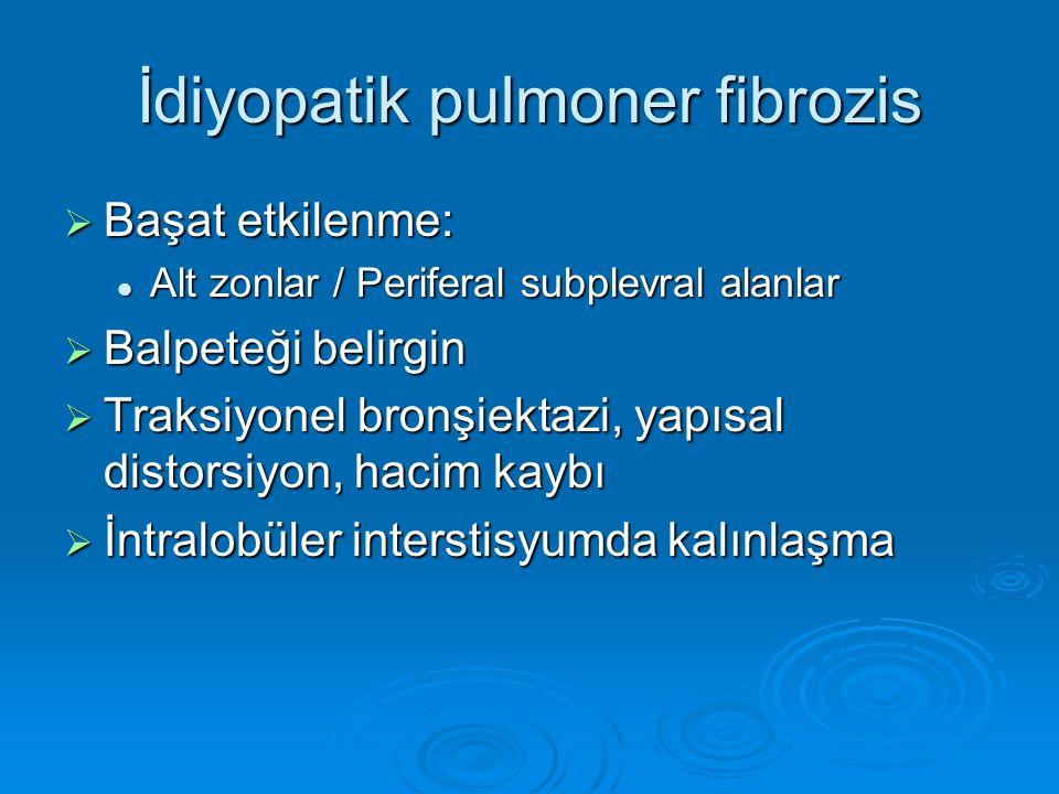 İdiyopatik pulmoner fibrozis  Başat etkilenme: Alt zonlar / Periferal subplevral alanlar Alt zonlar / Periferal subplevral alanlar  Balpeteği belirg