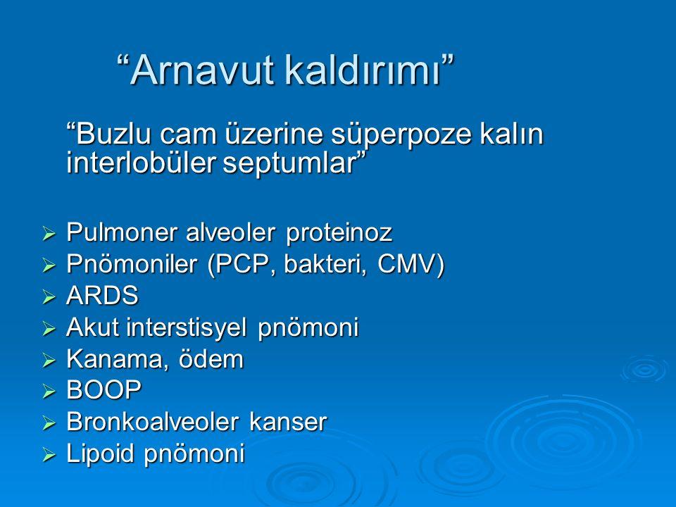 """""""Arnavut kaldırımı"""" """"Buzlu cam üzerine süperpoze kalın interlobüler septumlar""""  Pulmoner alveoler proteinoz  Pnömoniler (PCP, bakteri, CMV)  ARDS """