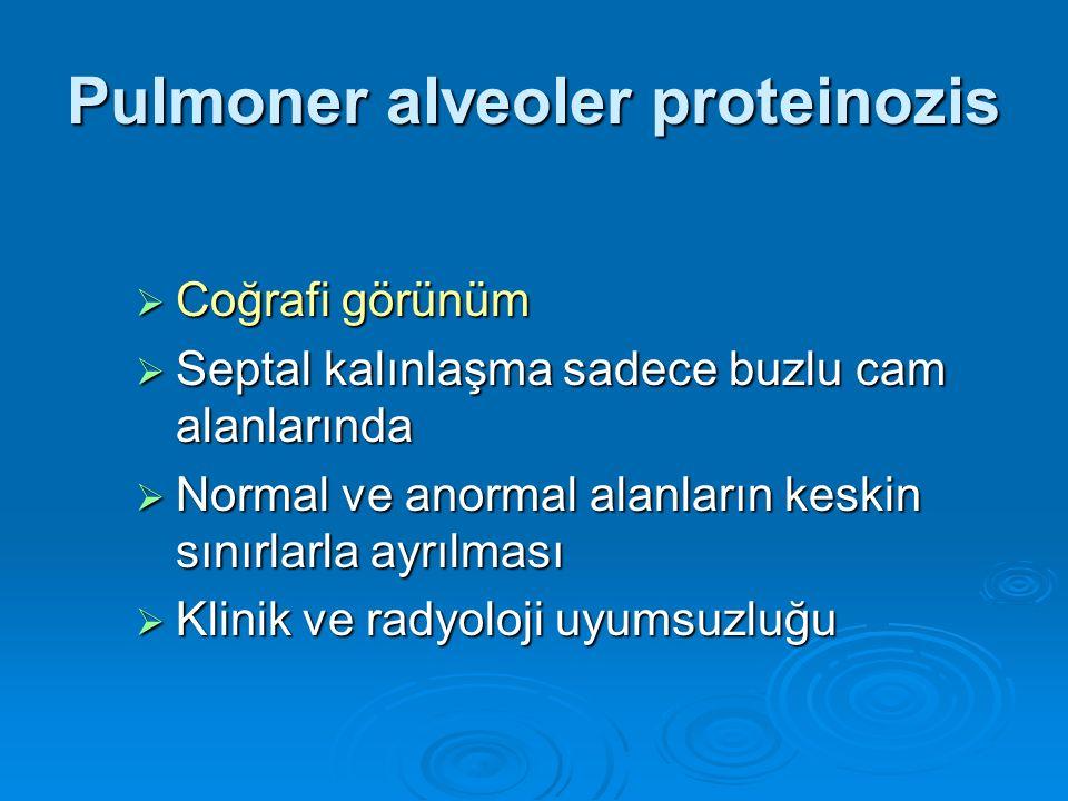 Pulmoner alveoler proteinozis  Coğrafi görünüm  Septal kalınlaşma sadece buzlu cam alanlarında  Normal ve anormal alanların keskin sınırlarla ayrıl