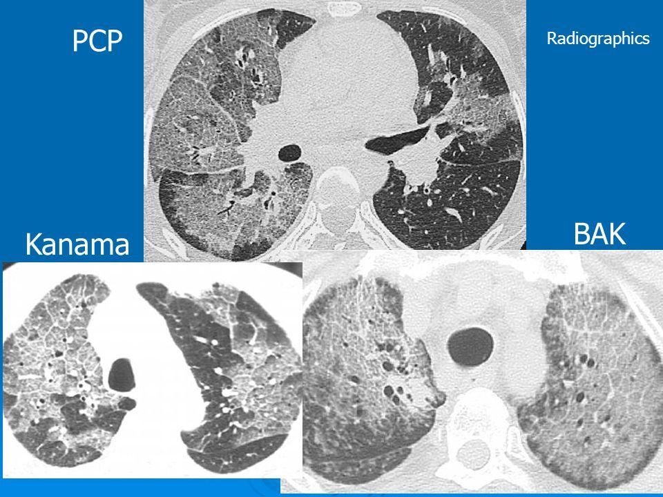 PCP Kanama BAK Radiographics