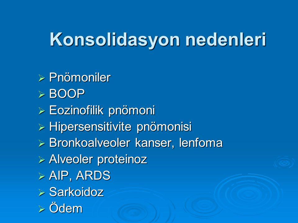 Konsolidasyon nedenleri  Pnömoniler  BOOP  Eozinofilik pnömoni  Hipersensitivite pnömonisi  Bronkoalveoler kanser, lenfoma  Alveoler proteinoz 