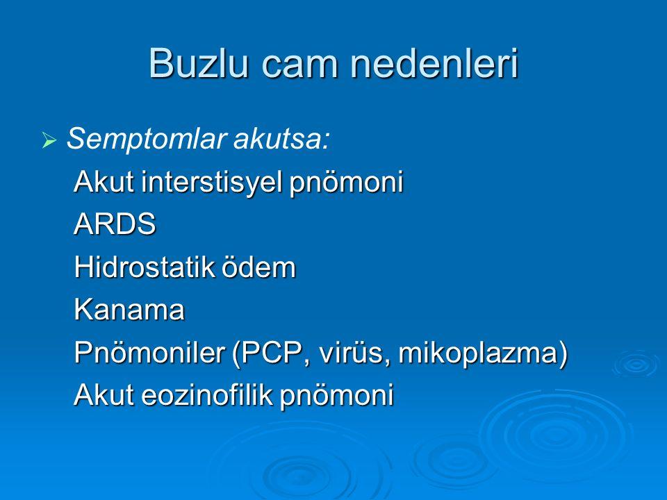 Buzlu cam nedenleri   Semptomlar akutsa: Akut interstisyel pnömoni ARDS Hidrostatik ödem Kanama Pnömoniler (PCP, virüs, mikoplazma) Akut eozinofilik