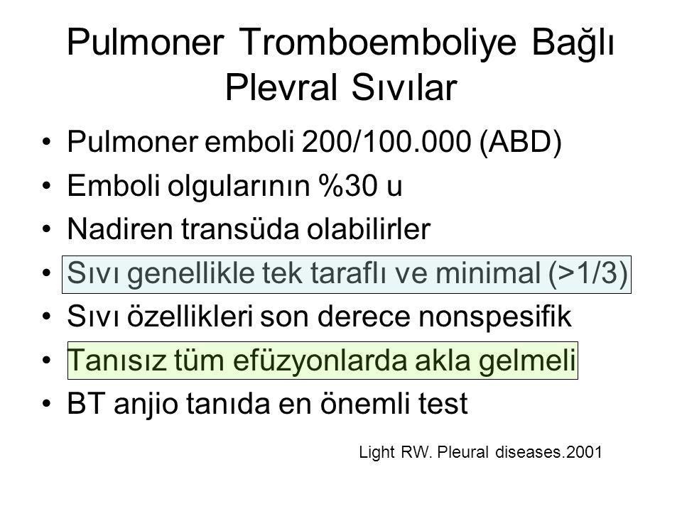 Pulmoner Tromboemboliye Bağlı Plevral Sıvılar Pulmoner emboli 200/100.000 (ABD) Emboli olgularının %30 u Nadiren transüda olabilirler Sıvı genellikle tek taraflı ve minimal (>1/3) Sıvı özellikleri son derece nonspesifik Tanısız tüm efüzyonlarda akla gelmeli BT anjio tanıda en önemli test Light RW.