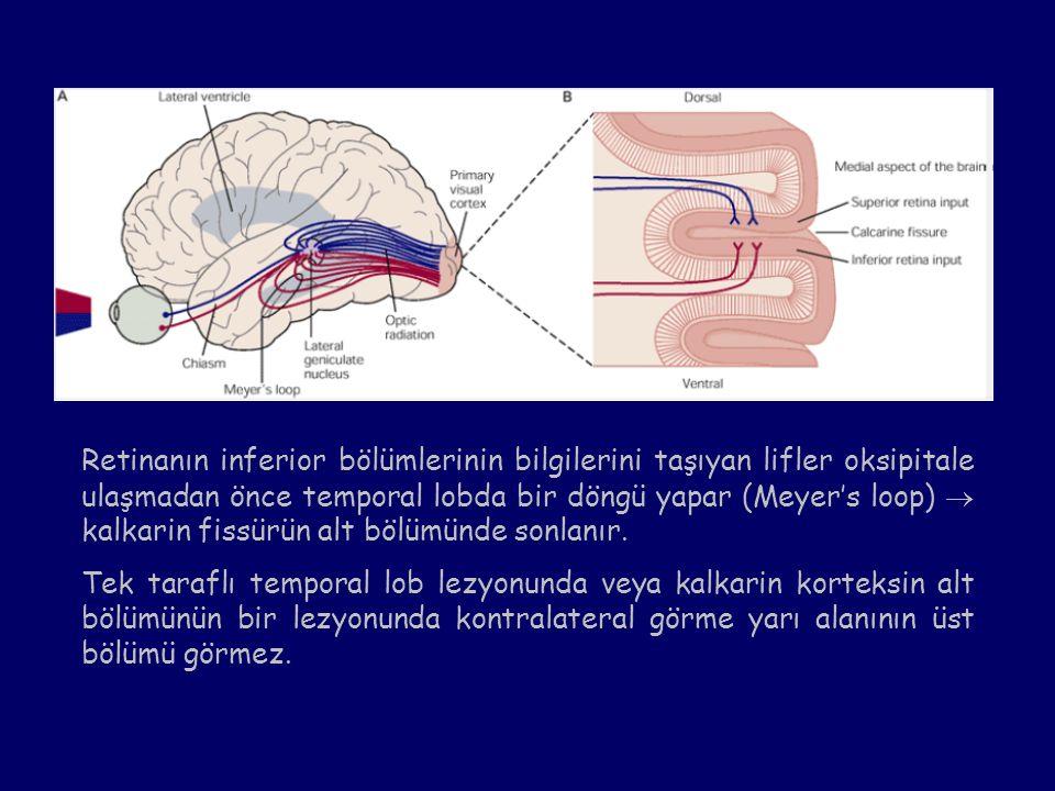 Retinanın inferior bölümlerinin bilgilerini taşıyan lifler oksipitale ulaşmadan önce temporal lobda bir döngü yapar (Meyer's loop)  kalkarin fissürün