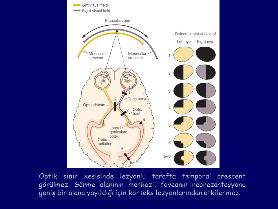 Optik sinir kesisinde lezyonlu tarafta temporal crescent görülmez. Görme alanının merkezi, foveanın reprezantasyonu geniş bir alana yayıldığı için kor