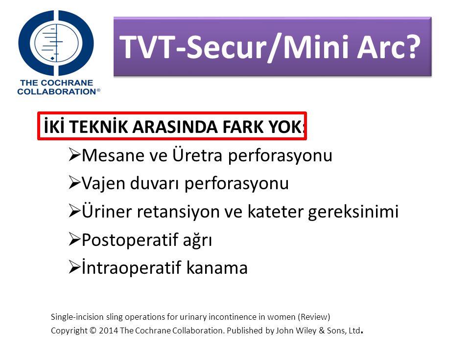 TVT-Secur/Mini Arc.