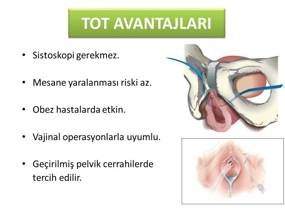TOT AVANTAJLARI Sistoskopi gerekmez. Mesane yaralanması riski az. Obez hastalarda etkin. Vajinal operasyonlarla uyumlu. Geçirilmiş pelvik cerrahilerde