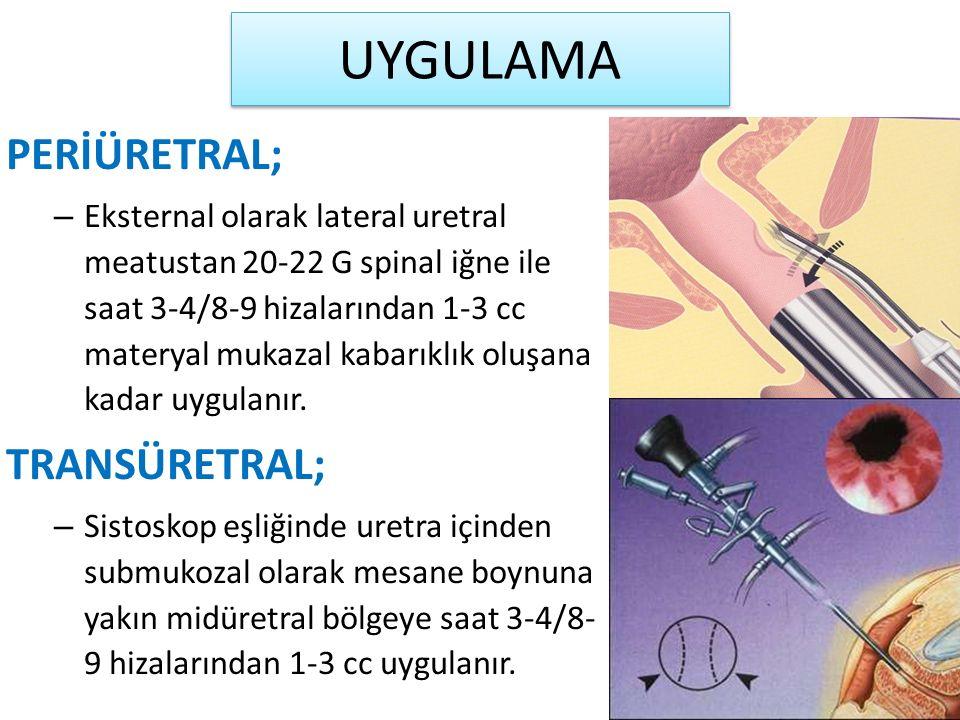 UYGULAMA PERİÜRETRAL; – Eksternal olarak lateral uretral meatustan 20-22 G spinal iğne ile saat 3-4/8-9 hizalarından 1-3 cc materyal mukazal kabarıklık oluşana kadar uygulanır.