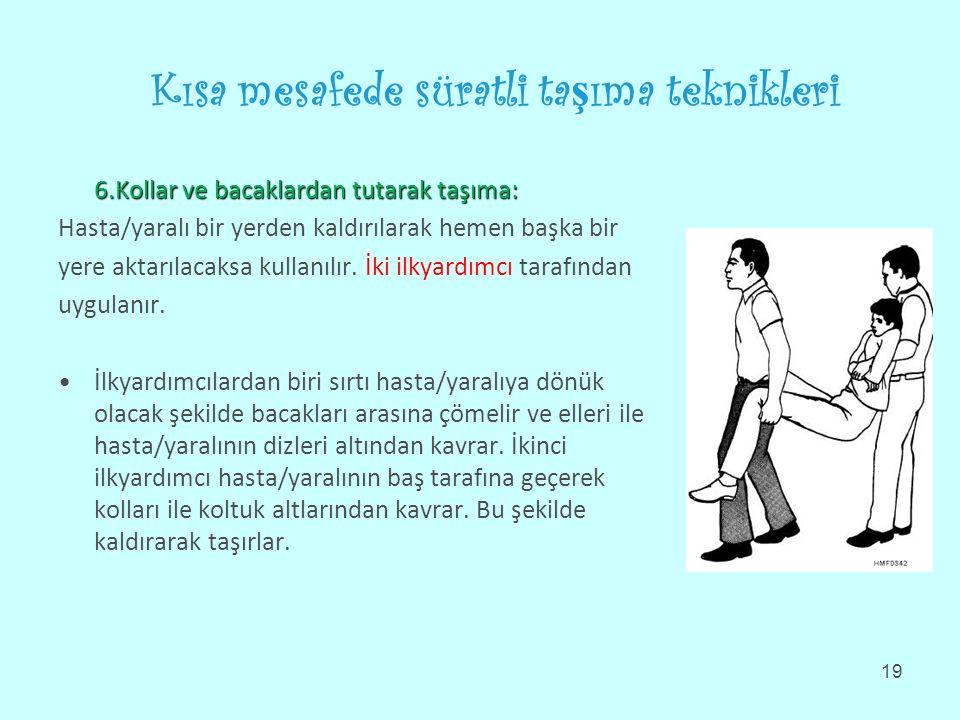 Kısa mesafede süratli ta ş ıma teknikleri 6.Kollar ve bacaklardan tutarak taşıma: Hasta/yaralı bir yerden kaldırılarak hemen başka bir yere aktarılacaksa kullanılır.