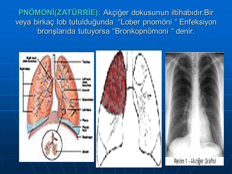 """PNÖMONİ(ZATÜRRİE): Akçiğer dokusunun iltihabıdır.Bir veya birkaç lob tutulduğunda """"Lober pnomöni """" Enfeksiyon bronşlarıda tutuyorsa """"Bronkopnömoni """" d"""