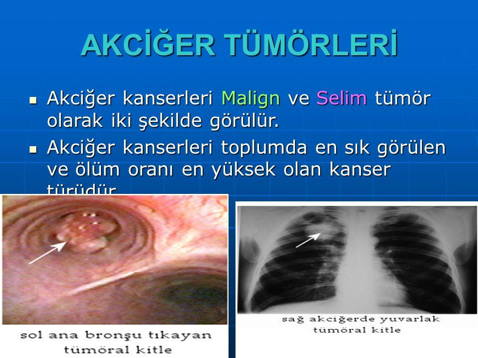 AKCİĞER TÜMÖRLERİ Akciğer kanserleri Malign ve Selim tümör olarak iki şekilde görülür. Akciğer kanserleri Malign ve Selim tümör olarak iki şekilde gör