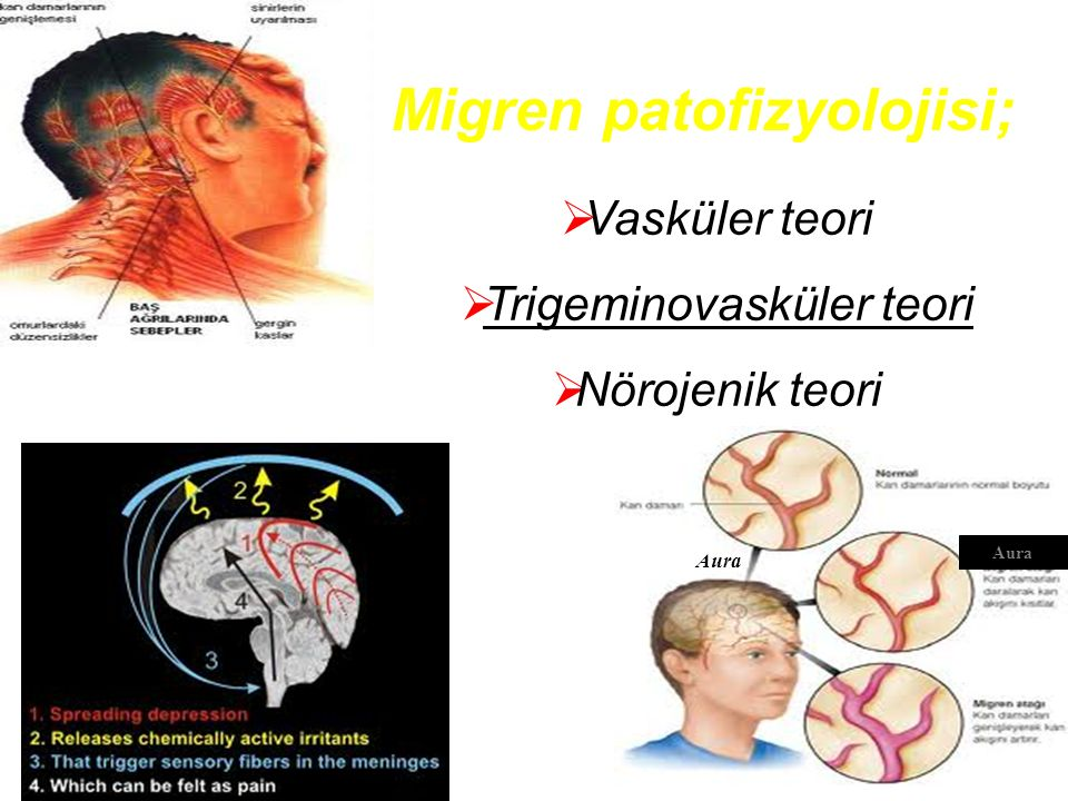  Vasküler teori  Trigeminovasküler teori  Nörojenik teori Migren patofizyolojisi; Aura