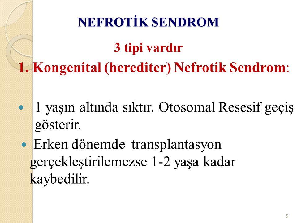 NEFROTİK SENDROM 3 tipi vardır 1. Kongenital (herediter) Nefrotik Sendrom: 1 yaşın altında sıktır. Otosomal Resesif geçiş gösterir. Erken dönemde tran