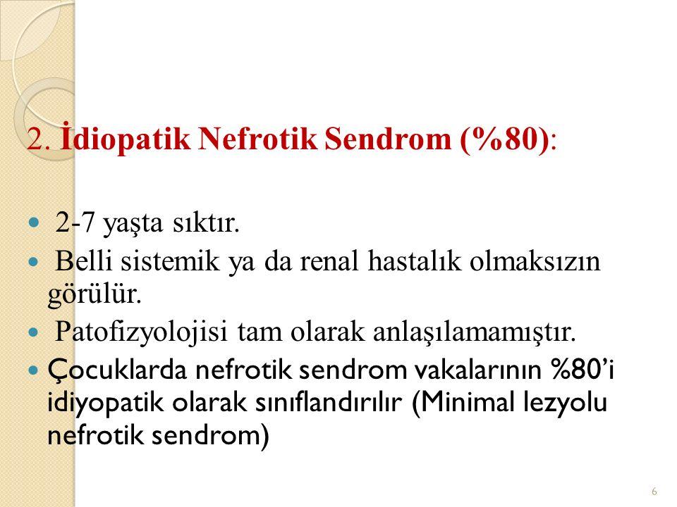 2. İdiopatik Nefrotik Sendrom (%80): 2-7 yaşta sıktır. Belli sistemik ya da renal hastalık olmaksızın görülür. Patofizyolojisi tam olarak anlaşılamamı