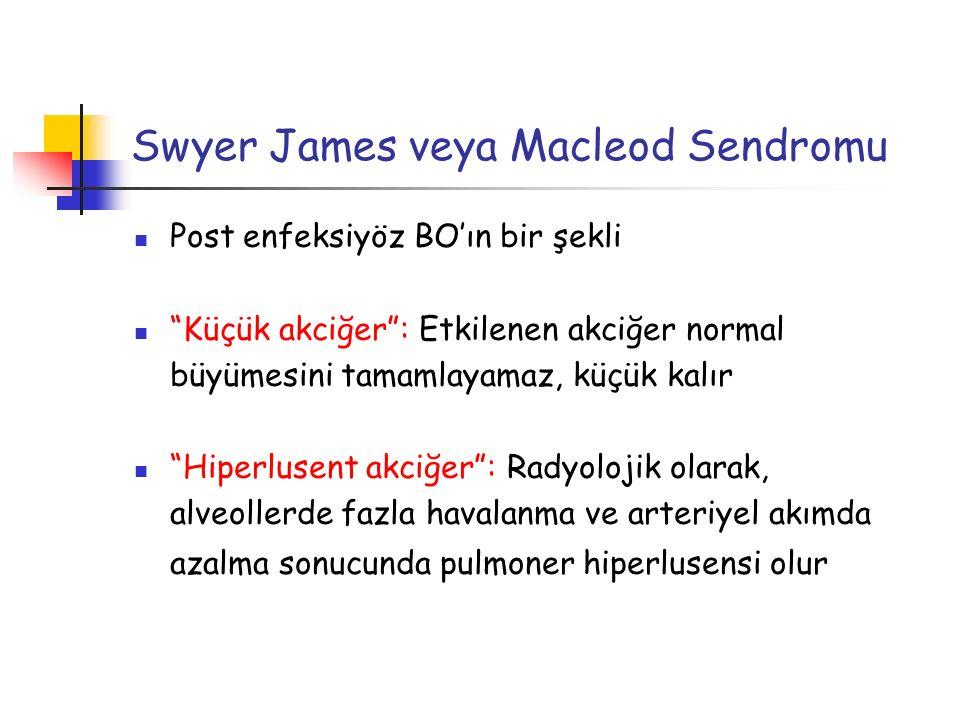 """Swyer James veya Macleod Sendromu Post enfeksiyöz BO'ın bir şekli """"Küçük akciğer"""": Etkilenen akciğer normal büyümesini tamamlayamaz, küçük kalır """"Hipe"""