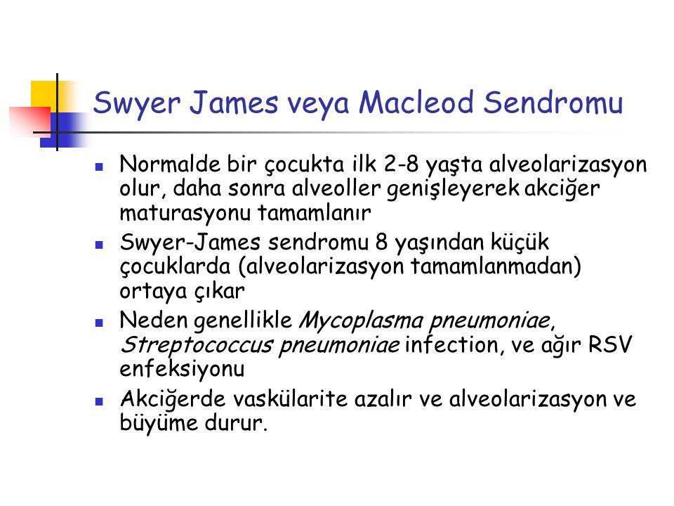 Swyer James veya Macleod Sendromu Normalde bir çocukta ilk 2-8 yaşta alveolarizasyon olur, daha sonra alveoller genişleyerek akciğer maturasyonu tamam