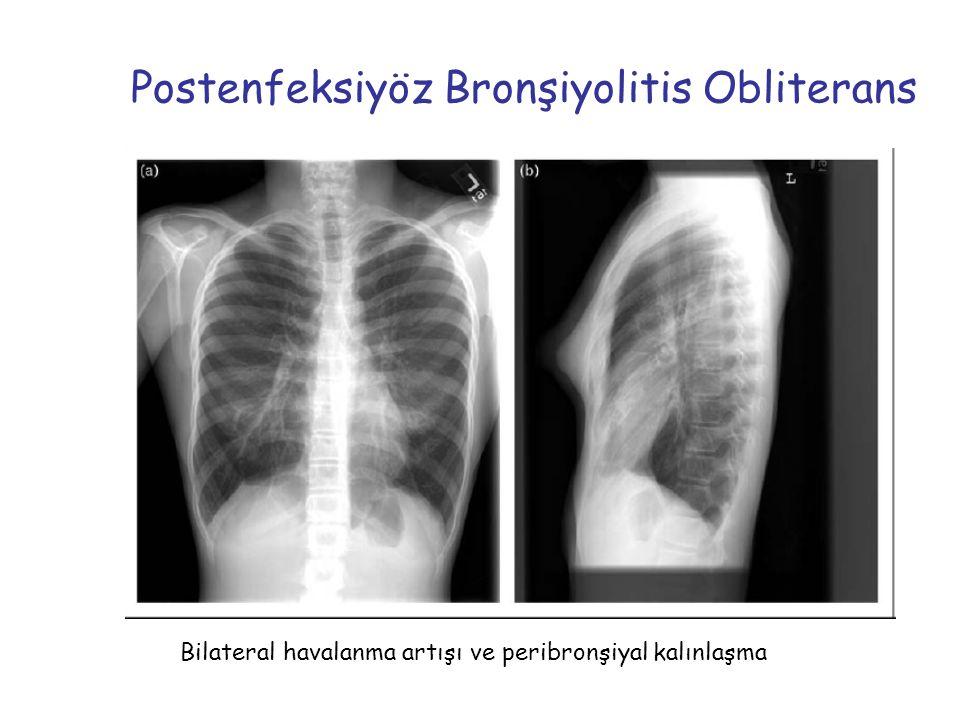 Postenfeksiyöz Bronşiyolitis Obliterans Bilateral havalanma artışı ve peribronşiyal kalınlaşma