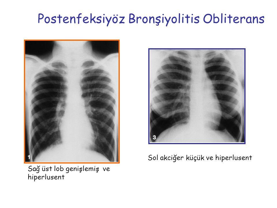 Postenfeksiyöz Bronşiyolitis Obliterans Sağ üst lob genişlemiş ve hiperlusent Sol akciğer küçük ve hiperlusent