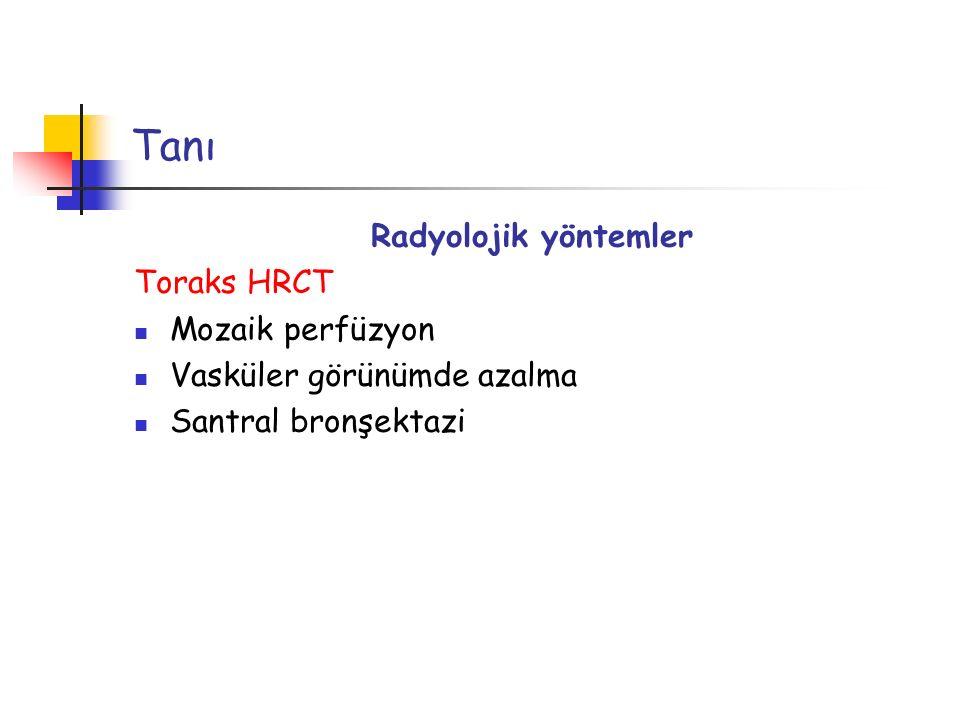 Tanı Radyolojik yöntemler Toraks HRCT Mozaik perfüzyon Vasküler görünümde azalma Santral bronşektazi