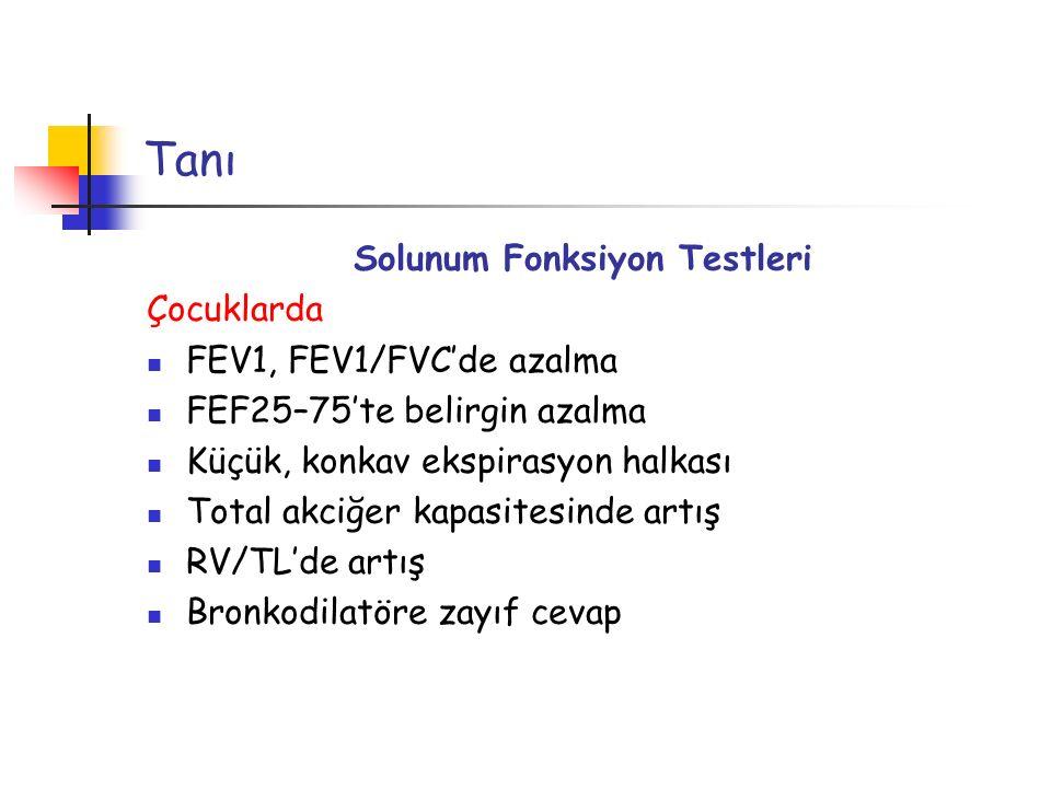 Tanı Solunum Fonksiyon Testleri Çocuklarda FEV1, FEV1/FVC'de azalma FEF25–75'te belirgin azalma Küçük, konkav ekspirasyon halkası Total akciğer kapasi