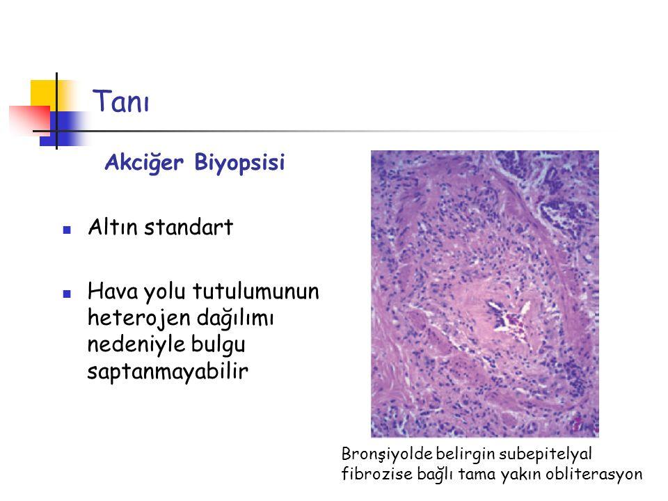Tanı Akciğer Biyopsisi Altın standart Hava yolu tutulumunun heterojen dağılımı nedeniyle bulgu saptanmayabilir Bronşiyolde belirgin subepitelyal fibro