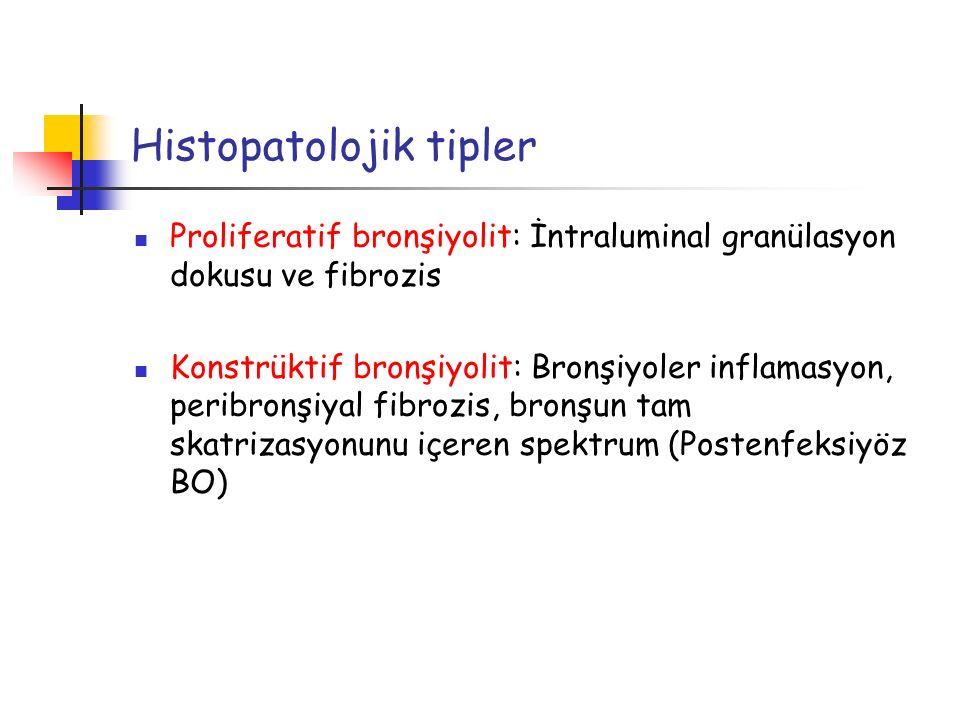 Tedavi Sistemik Kortikosteroidler Etkisi .
