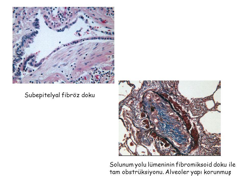 Subepitelyal fibröz doku Solunum yolu lümeninin fibromiksoid doku ile tam obstrüksiyonu. Alveoler yapı korunmuş