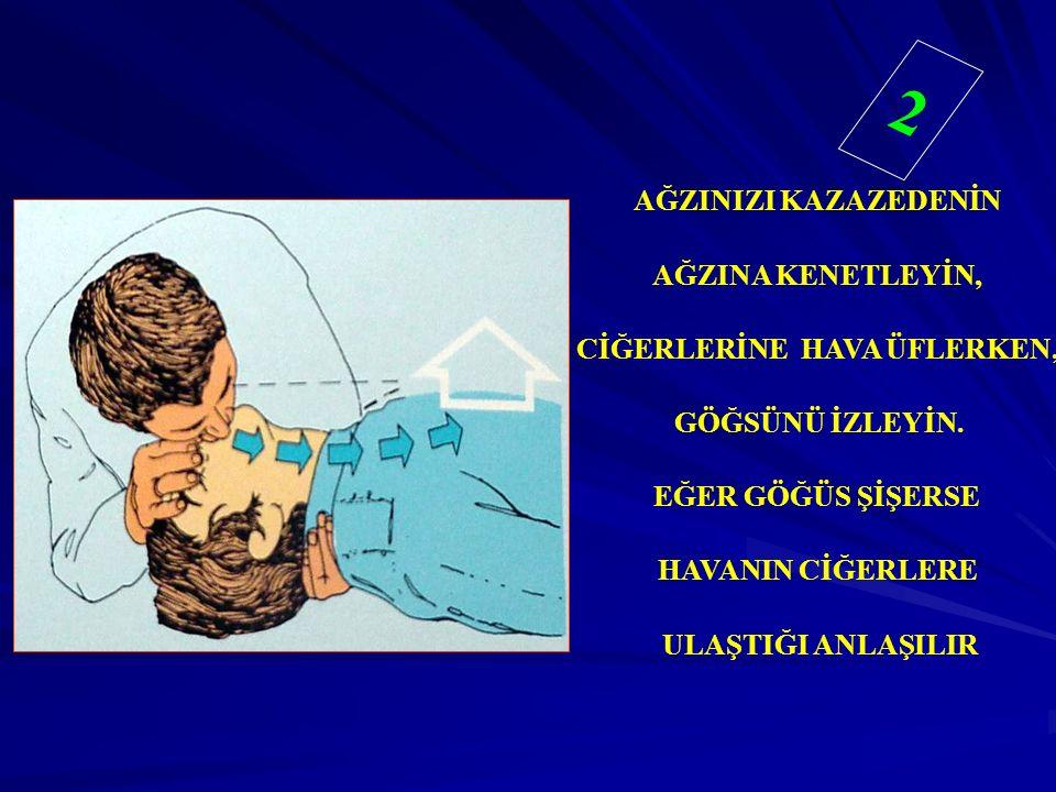 AĞZINIZI KAZAZEDENİN AĞZINA KENETLEYİN, CİĞERLERİNE HAVA ÜFLERKEN, GÖĞSÜNÜ İZLEYİN. EĞER GÖĞÜS ŞİŞERSE HAVANIN CİĞERLERE ULAŞTIĞI ANLAŞILIR 2 2