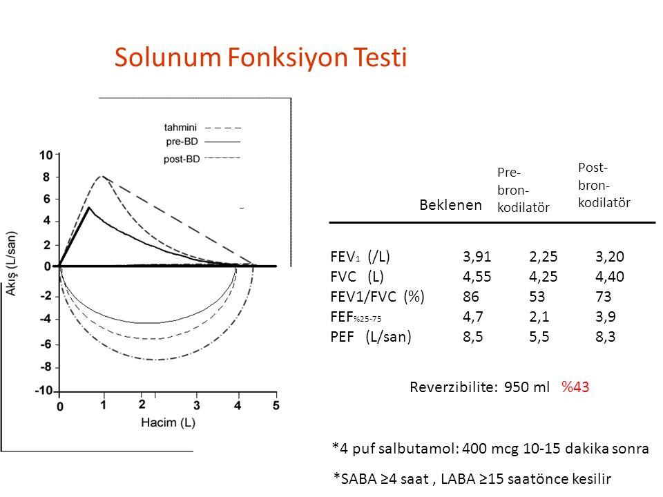 Solunum Fonksiyon Testi Pre- bron- kodilatör Post- bron- kodilatör FEV 1 (/L)3,912,253,20 FVC (L)4,554,254,40 FEV1/FVC (%)865373 FEF %25-75 4,72,13,9