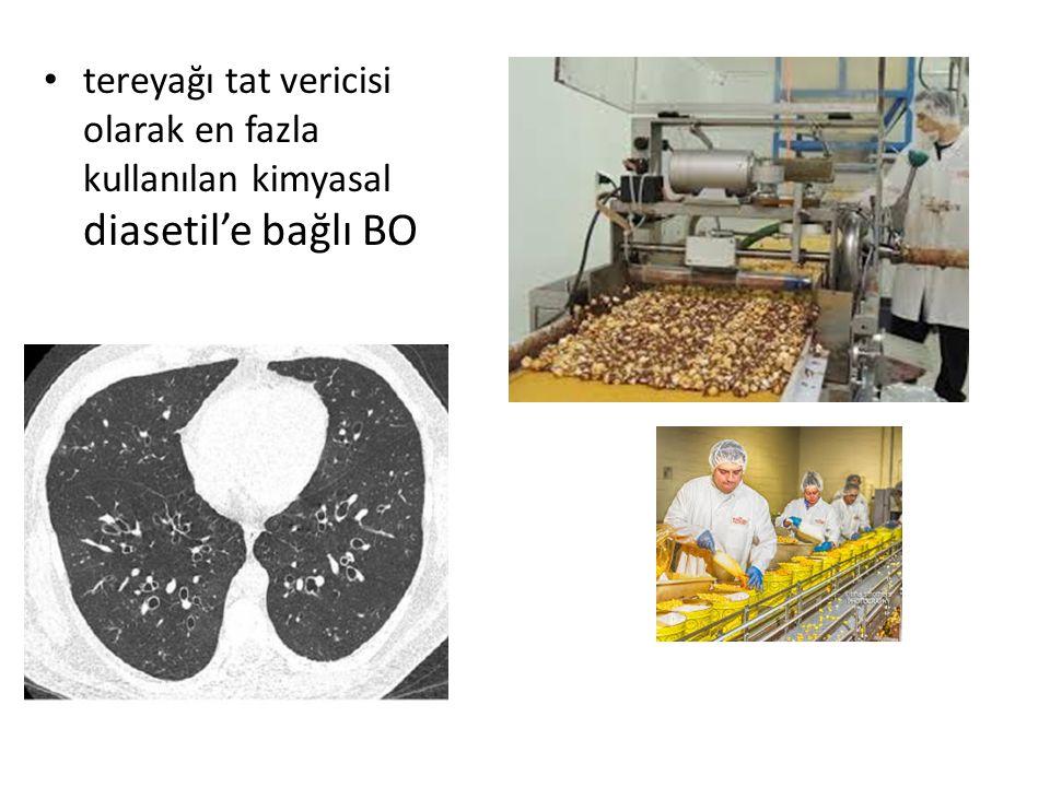 tereyağı tat vericisi olarak en fazla kullanılan kimyasal diasetil'e bağlı BO