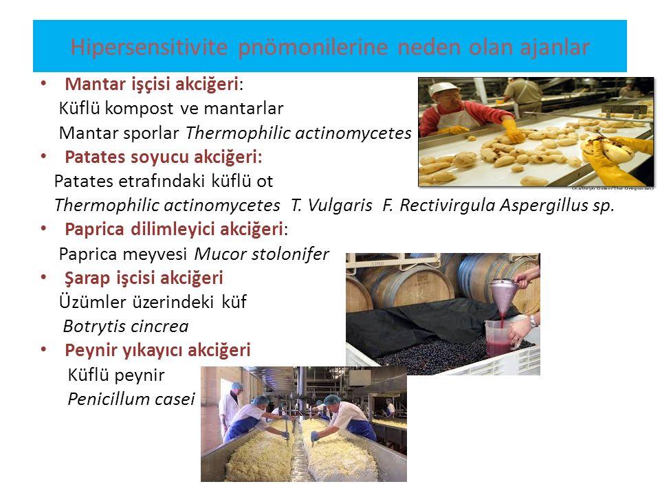 Hipersensitivite pnömonilerine neden olan ajanlar Mantar işçisi akciğeri: Küflü kompost ve mantarlar Mantar sporlar Thermophilic actinomycetes Patates
