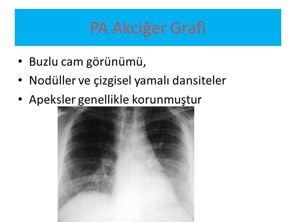 PA Akciğer Grafi Buzlu cam görünümü, Nodüller ve çizgisel yamalı dansiteler Apeksler genellikle korunmuştur
