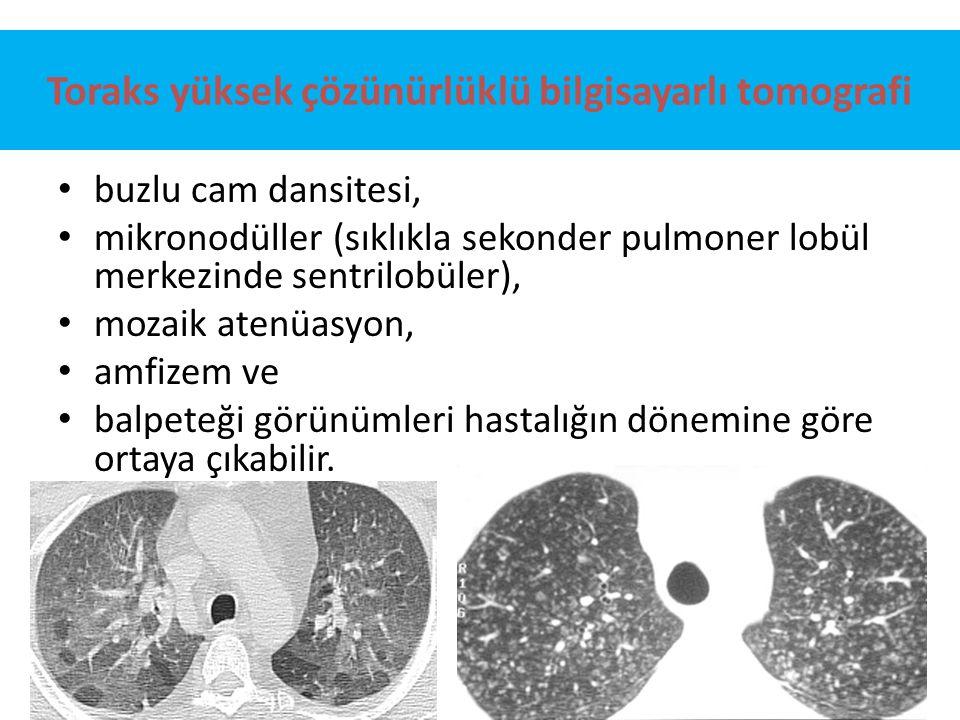 Toraks yüksek çözünürlüklü bilgisayarlı tomografi buzlu cam dansitesi, mikronodüller (sıklıkla sekonder pulmoner lobül merkezinde sentrilobüler), moza