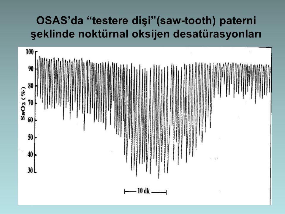 """OSAS'da """"testere dişi""""(saw-tooth) paterni şeklinde noktürnal oksijen desatürasyonları"""