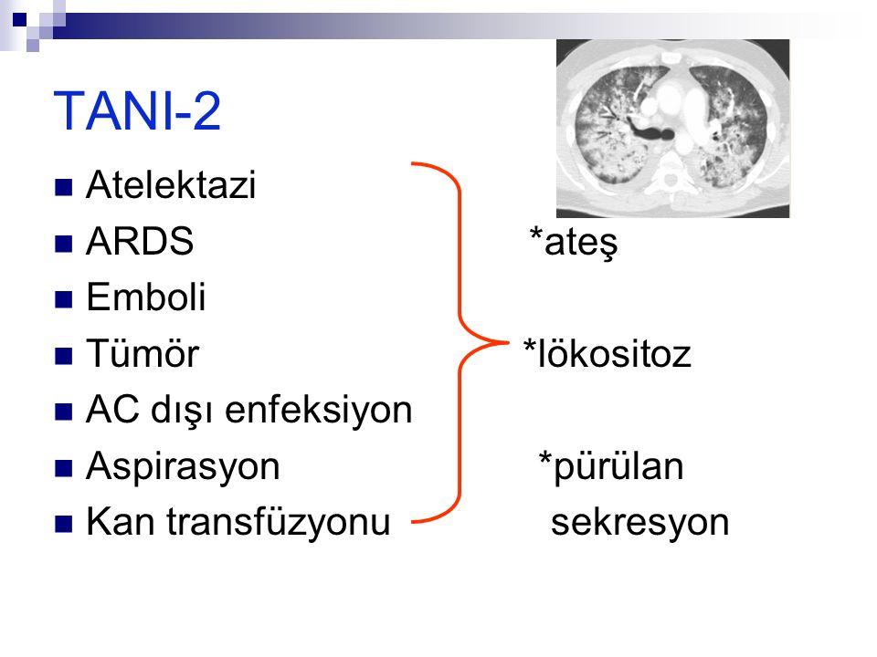TANI-2 Atelektazi ARDS *ateş Emboli Tümör *lökositoz AC dışı enfeksiyon Aspirasyon *pürülan Kan transfüzyonu sekresyon