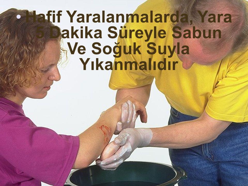 Hafif Yaralanmalarda, Yara 5 Dakika Süreyle Sabun Ve Soğuk Suyla Yıkanmalıdır