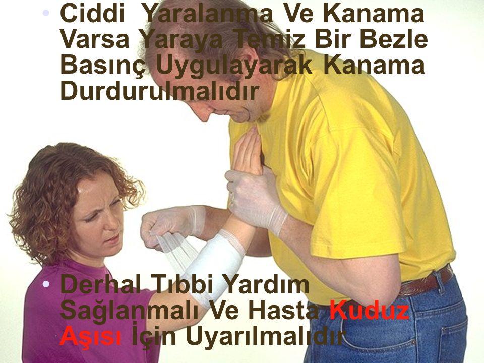 Ciddi Yaralanma Ve Kanama Varsa Yaraya Temiz Bir Bezle Basınç Uygulayarak Kanama Durdurulmalıdır Derhal Tıbbi Yardım Sağlanmalı Ve Hasta Kuduz Aşısı İçin Uyarılmalıdır