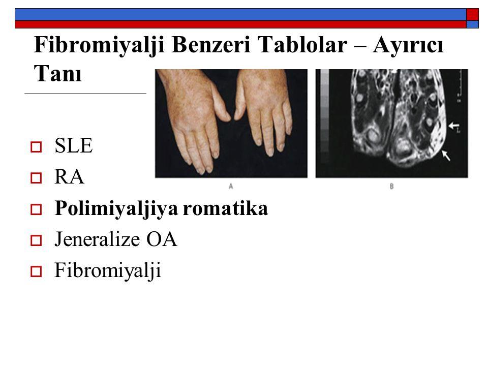 Fibromiyalji Benzeri Tablolar – Ayırıcı Tanı  SLE  RA  Polimiyaljiya romatika  Jeneralize OA  Fibromiyalji