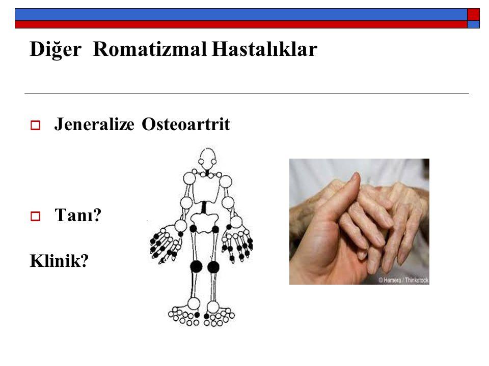 Diğer Romatizmal Hastalıklar  Jeneralize Osteoartrit  Tanı? Klinik?