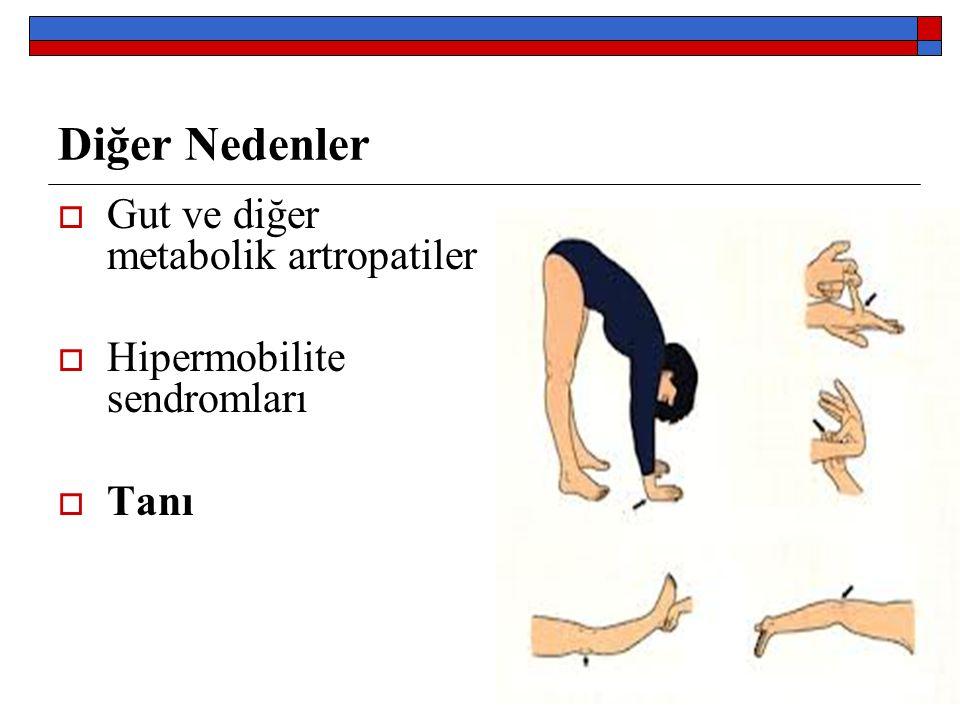 Diğer Nedenler  Gut ve diğer metabolik artropatiler  Hipermobilite sendromları  Tanı