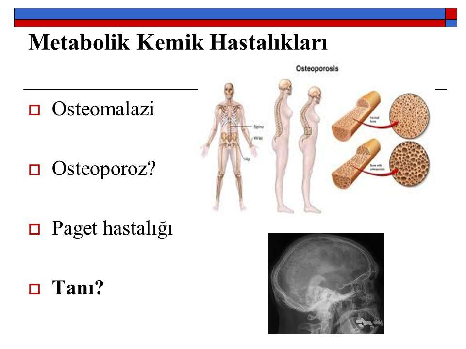 FS Tanısı  1.Üç ayı aşan süreli  Yaygın ağrı  2.
